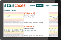 STAN Cases